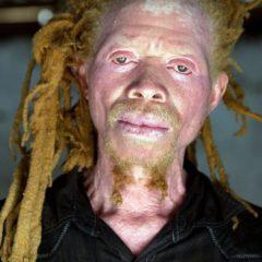 Танзания и альбиносы: почему опасно быть не таким, как все?